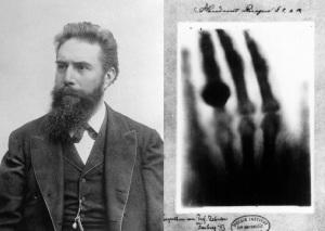 wilhelm conrad roentgen dan x-ray istrinya